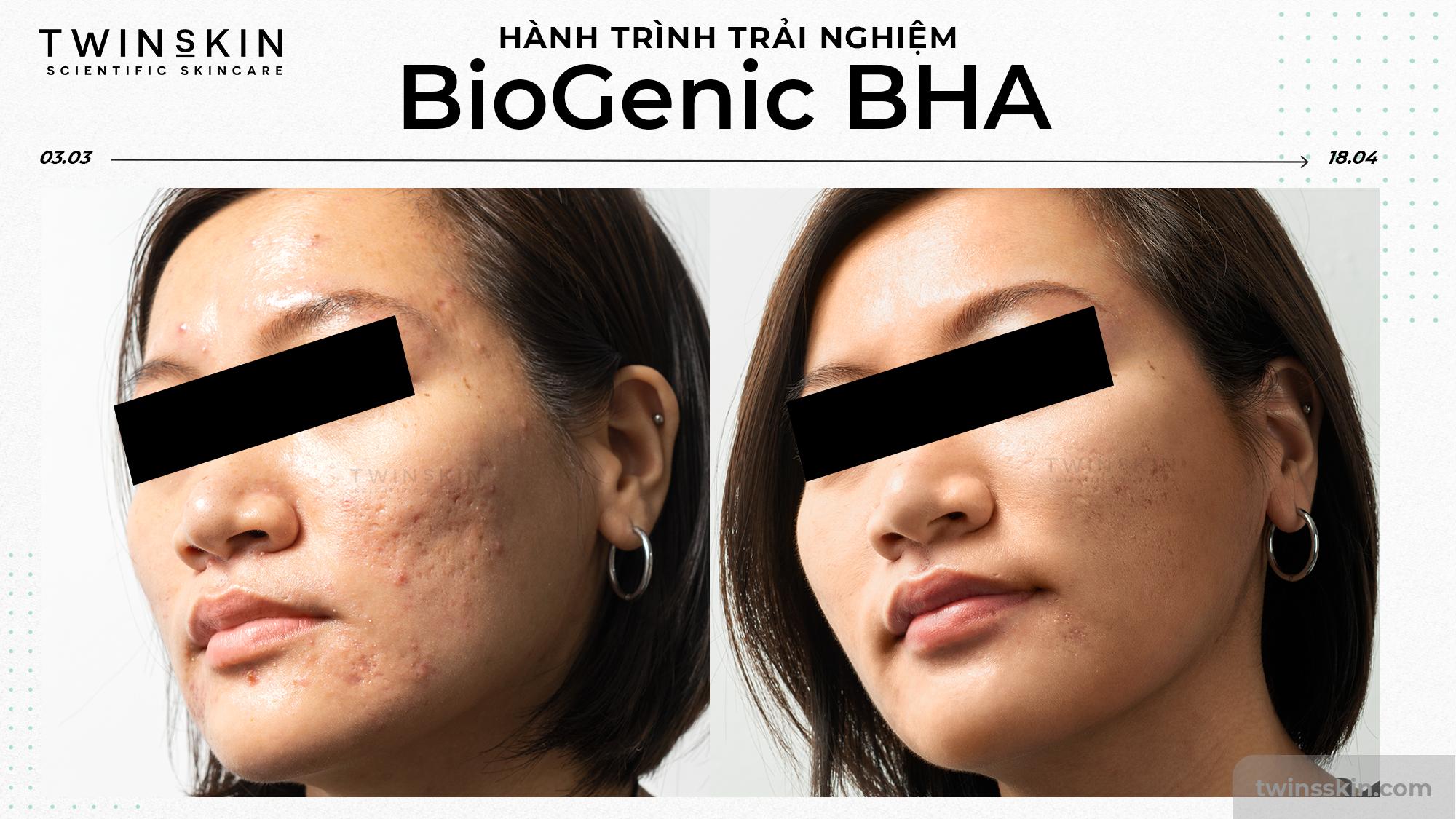 feedback-biogenicbha-banner-LP-2000x1125_1